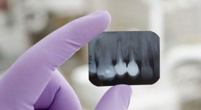 Dental Q